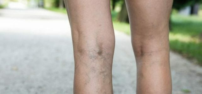 Varicose Veins: Pain, Swelling & Managing Your Symptoms