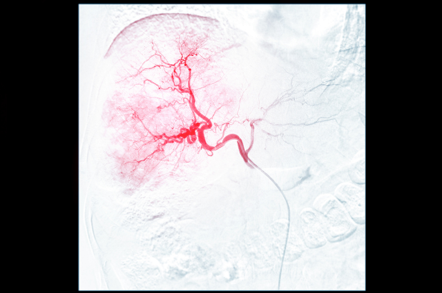 image of chemoembolization