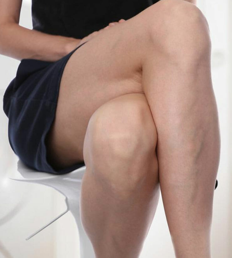 manage varicose veins symptoms