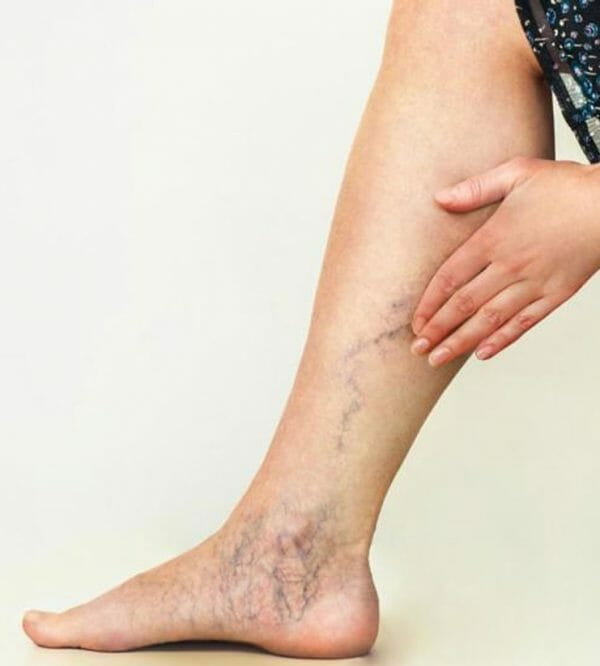 vein removal for your legs