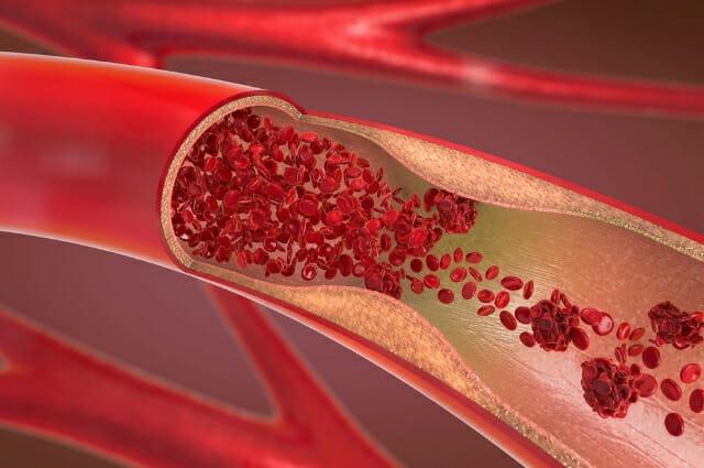 arterial blockages