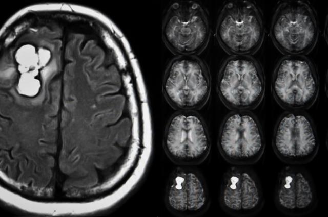 brain tumor ct scan