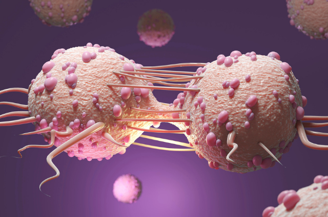cancerous or malignant tumors