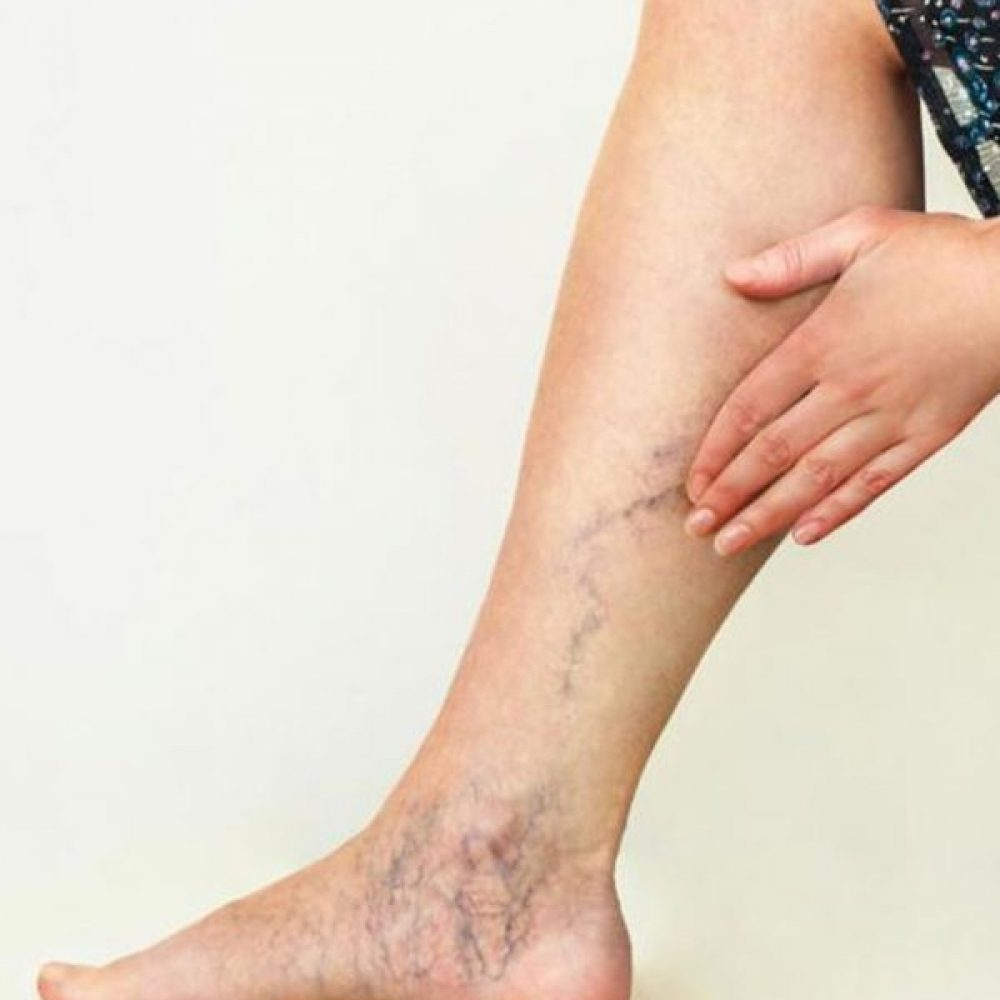 Vein Removal Guide for Patients
